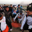 Medics carry a young man with a wounded leg on a stretcher